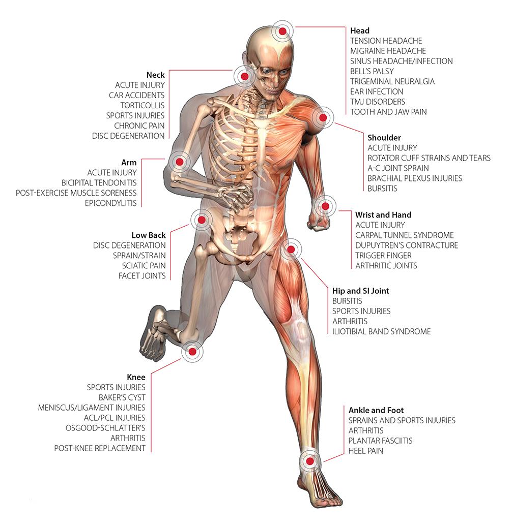 K Laser for musculoskeletal